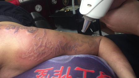 宝坻激光洗纹身效果 孤狼纹身工作室 天津