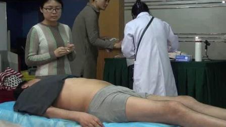 马春晖老师腹八卦埋线治疗股骨头坏死