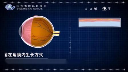 眼科手术2.mp4