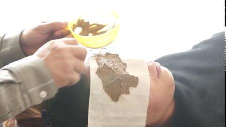 鸿玉堂视力养护青少年近视眼点穴艾灸操作3