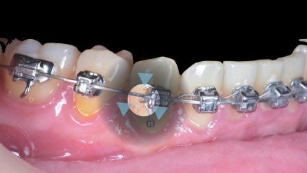 CC433. Tips for Avoiding Mucosal Irritation