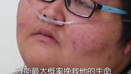 540斤肥胖症患者命悬一线,一夜间呼吸暂停509次,暂停时间最长高达85秒,不得不通过外科手术挽救他的生命。