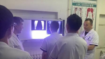 小腿骨折了怎么办?哈尔滨平房区中德骨科医院创伤科崔喜山医是创伤骨科疾病方面的专家。