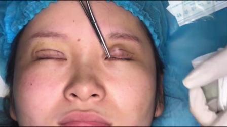 双眼皮视频的双眼皮视频操作