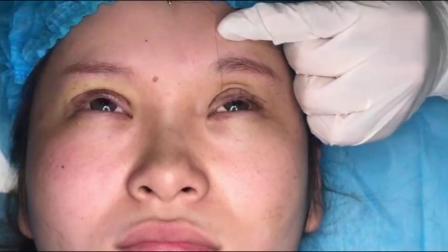埋线双眼皮视频操作全过程讲解