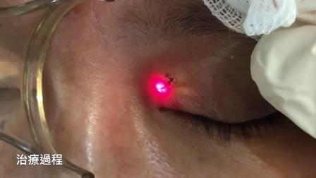 脸黄瘤激光治疗