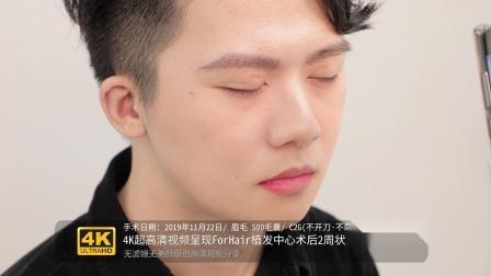 【FORHAIR植发中心】 植眉2周-4K超高清视频分享