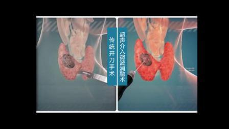 武汉仁安眼耳鼻喉医院甲状腺科:常规手术和微波消融术对比