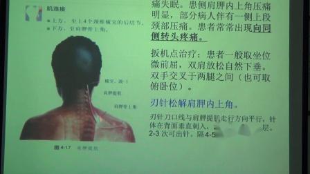 刃针治疗颈椎病