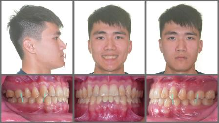 Aligner treatment of Class III malocclusion with anterior crossbite