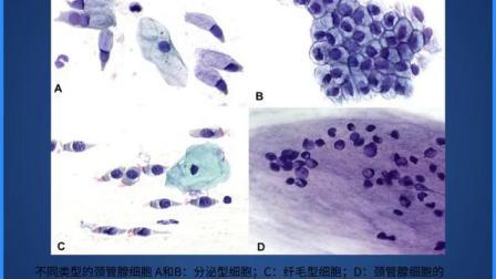 宫颈细胞学_标清