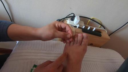 罐儿哥腰痛病例调理定稿.mp4