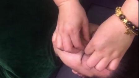 刘艳能量手 苹果肌打造 去皱美容