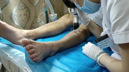 南宁肤康皮肤病 医院-洗纹身多少钱-点阵激光治疗中.mp4