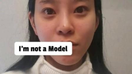 【韩国DA整形】轮廓三件套+鼻综合,变化就是这么大