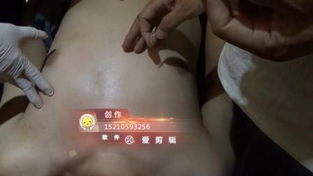 聚医康-新九针乳腺炎乳腺增生