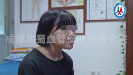 川蜀血管病医院-盼盼-右侧眼睑海绵状血管瘤