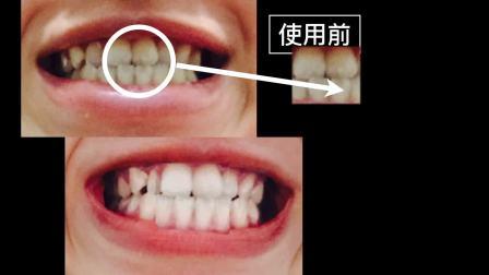 最新一代居家冷光美白牙齿!「冷光牙齿美白」去除牙渍牙黄,拥有自信笑容!美拍美妆