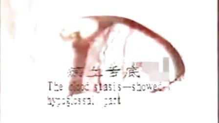 天津中医学院电教片《中医舌诊》上集