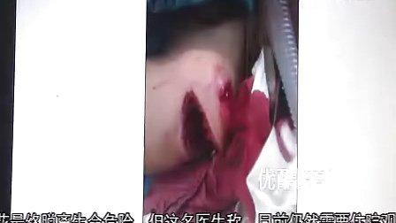 深圳一女子被欠债人砍六十三刀死里逃生