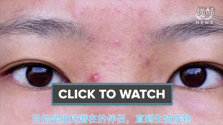 脸上青春痘,可以怪父母吗?DNews: Are Your Parents To Blame For Your Bad Acne?