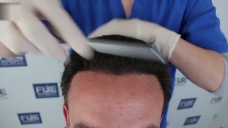 明明年纪轻轻脱发后像大叔,植发3958毛囊单位竟可以梳分头了!