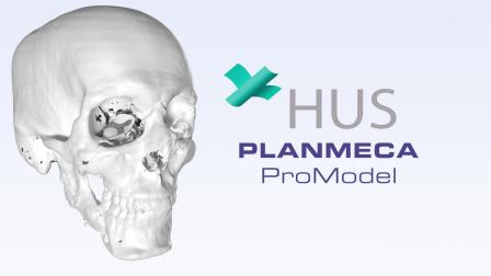普兰梅卡参与第二例面部移植外科手术