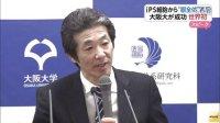 ヒトiPS細胞から目全体の組織の作成に成功 大阪大学研究グルプ