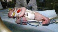 妈妈怀上人鱼宝宝 胎儿下肢类似美人鱼的尾巴