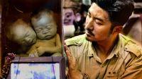 第一百零九集 离奇身世的双头怪婴 泰国