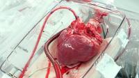 全球首例3D打印心脏, 像真心脏一样跳动, 造福千万心脏病患者