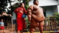 印度男童体重380公斤, 一天要吃十顿饭, 出生就有20斤