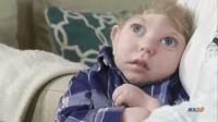还没出生就被检查出颅骨缺失, 夫妇俩不听劝执意将孩子生了下来