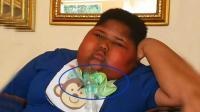 非洲男孩时时刻刻都要进食, 如今胖到呼吸都要靠气管!