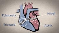 心脏瓣膜疾病小科普: 带你了解人体心脏输血的机制
