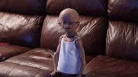 印度男孩患离奇病症, 15岁身高仅1.2米, 长相神似外星人!