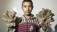 """孟加拉小哥患怪病犹如""""树人"""" 手术后割掉11公斤""""树枝"""""""