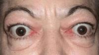 眼皮跳真的和运气有关吗? 科学家告诉你真正的原因!