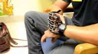 3D打印仿生机械手指, 特殊人群的福音