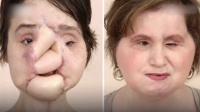 少女举枪自尽致完全毁容经换脸手术恢复