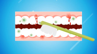 知名中药牙膏被指止血靠加西药