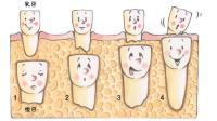 牙齿的秘密 宝宝换牙期科普绘本: 换牙书