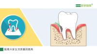 【医学微视】老年人的口腔疾病有哪些? 诱发口腔疾病的原因是什么?