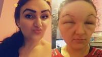 18岁女子染发剂过敏 脸肿大一倍眼睛无法睁开