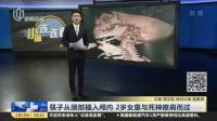视频|筷子从颈部插入颅内 2岁女童与死神擦肩而过