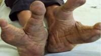 """""""外星人""""在非洲定居?只有两个脚指头,看见人类就立马躲开"""
