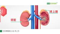 【医学微视】肾上腺意外瘤是怎么回事?