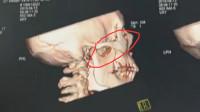 男子眼部藏8.5cm筷子张不开嘴 竟两个月后才发现
