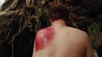 失落的大陆:男子被蚊子咬了一口,早上醒来,后背竟长出巨大的包