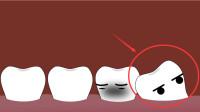 为什么牙科医生都劝你拔智齿?看完这个视频,现在后悔还来得及!